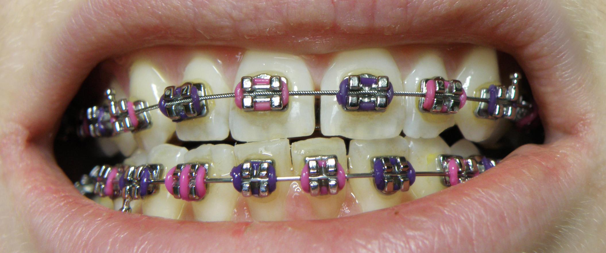 brackets metalicos méxico