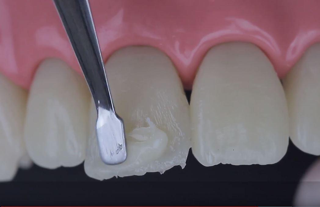precio resina dental en méxico