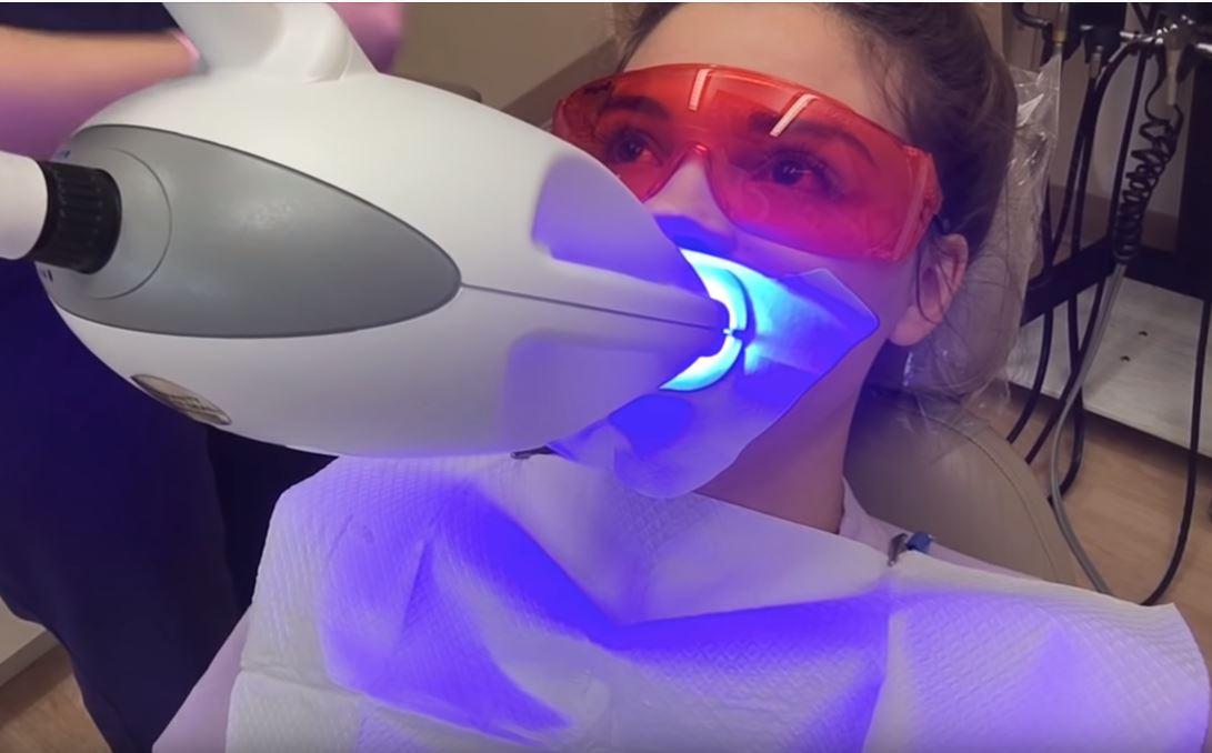 precio blanqueamiento dental laser mexico
